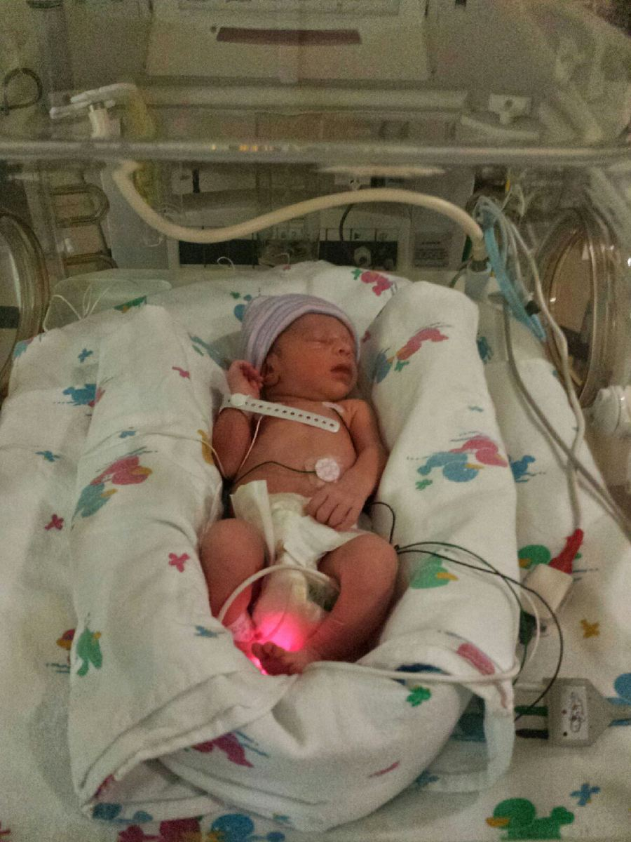 Picture of Baby Zoey in incubator